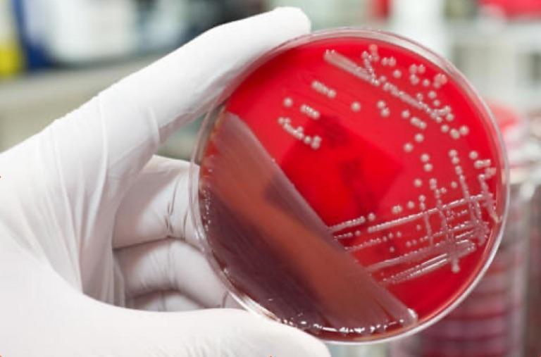 Hur får man bort bakterier i dricksvattnet?